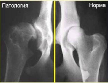 Рентген снимок дисплазии тазобедренного сустава