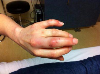 Рана после укуса кошки