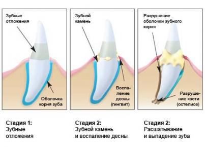 Развитие зубного камня у кошки