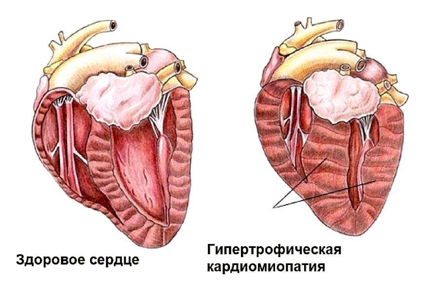 Гипертрофическая кардиомиопатия картинки